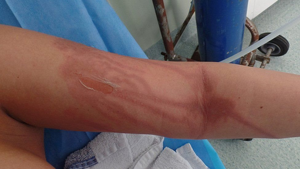Las quemaduras en el brazo de Phoebe