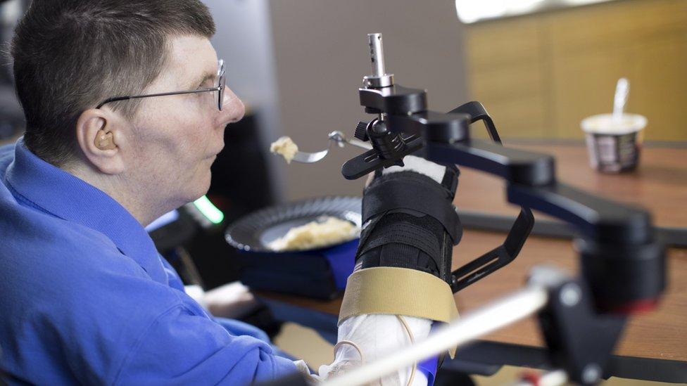 Bill Kochevar, de 53 años, que se quedó tetrapléjico hace ocho años tras un accidente de bicicleta.