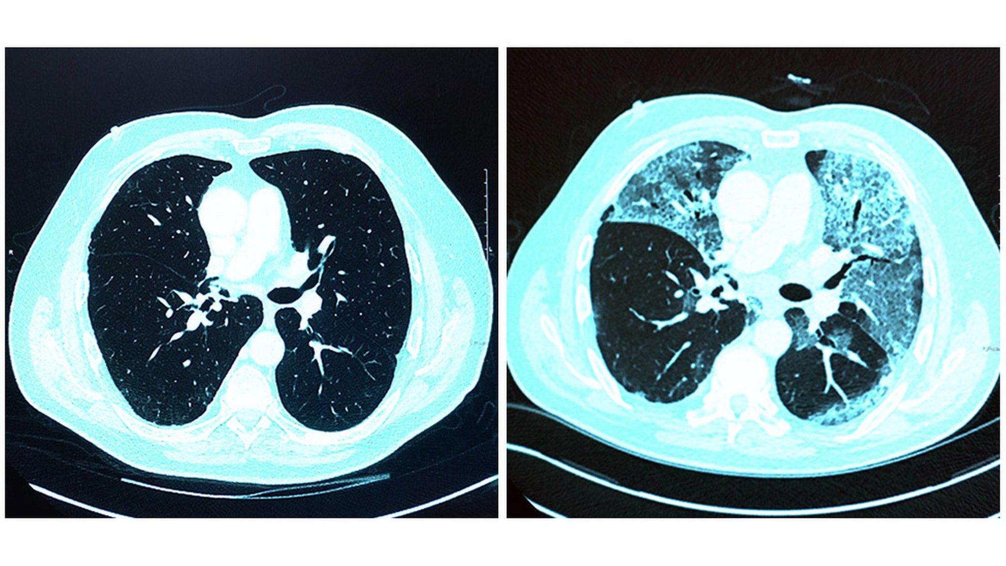 肺炎 初期 コロナ