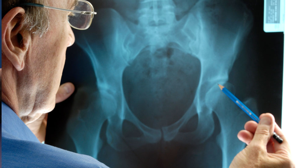 Most hip and knee replacements 'last longer than thought'