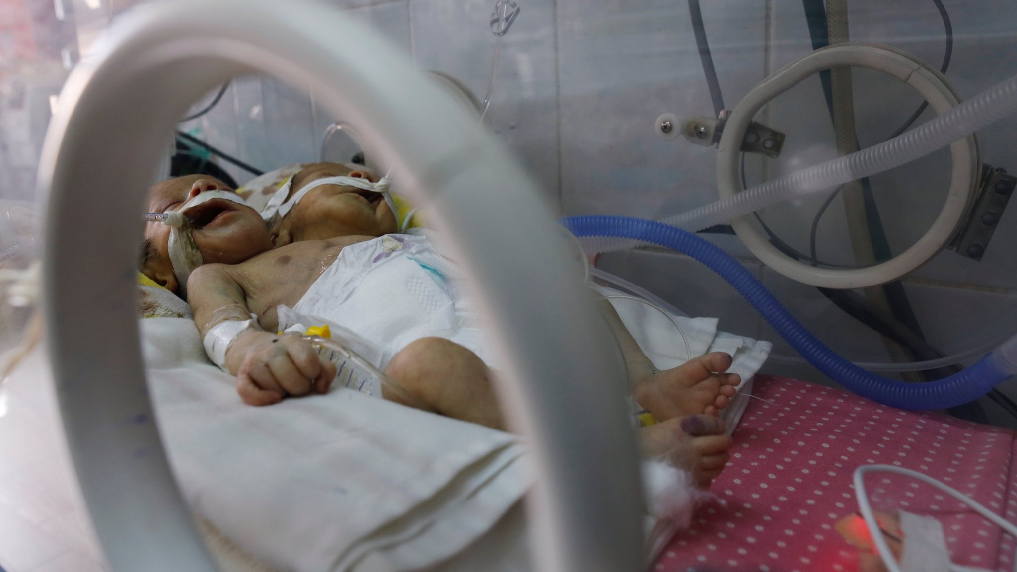 Yemen conjoined twins: Doctors appeal for help evacuating boys