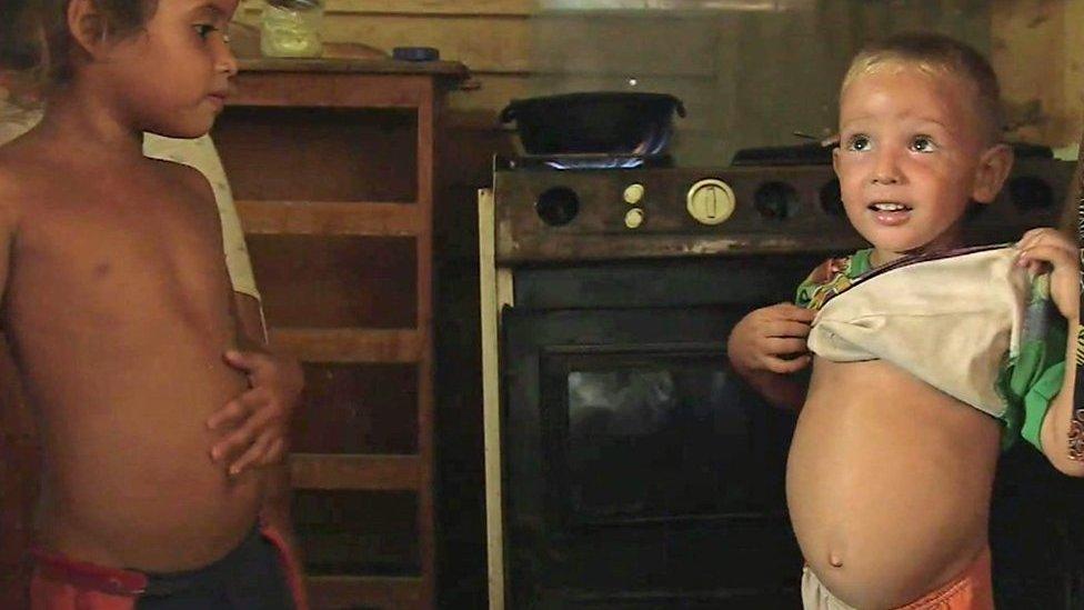 Niño venezolano con la barriga hinchada