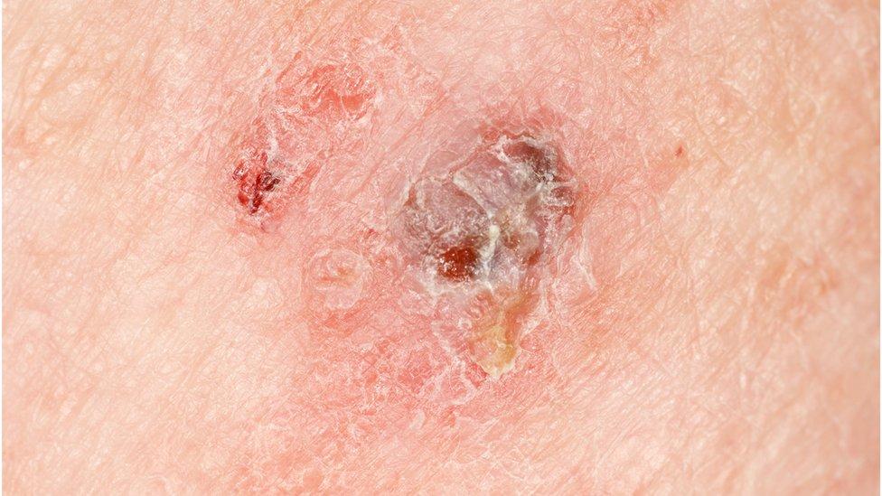 سرطان الميلانوما