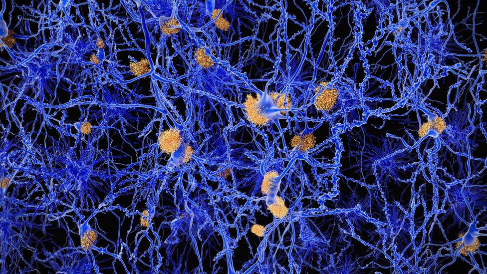 شبكة عصبية مصابة بمرض ألزهايمر