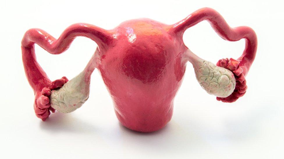 La extirpación del útero y los ovarios es el último recurso para tratar el trastorno disfórico premenstrual.