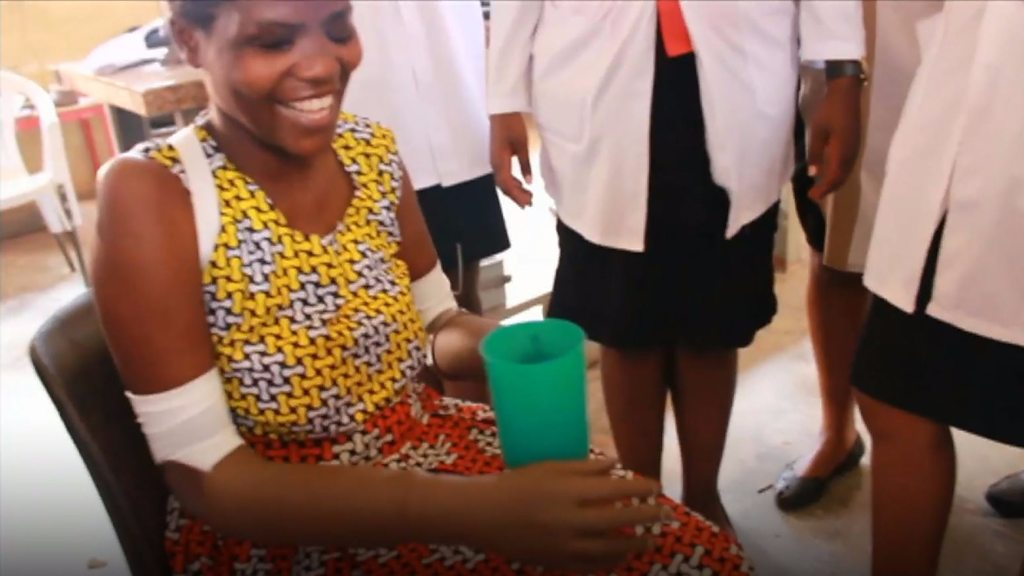 <![CDATA[Prosthetic arms made in Salford help Ugandan machete attack victim]]>