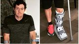 Rory McIlroy is in a protective boot after rupturing an ankle ligament