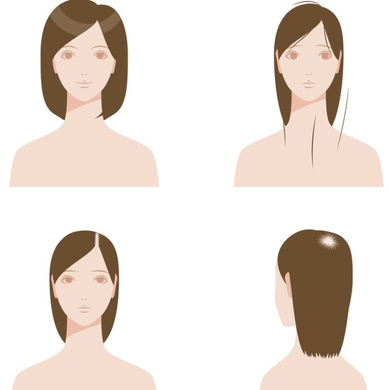 Los cabellos sobre la persona a las mujeres los medios farmacéuticos