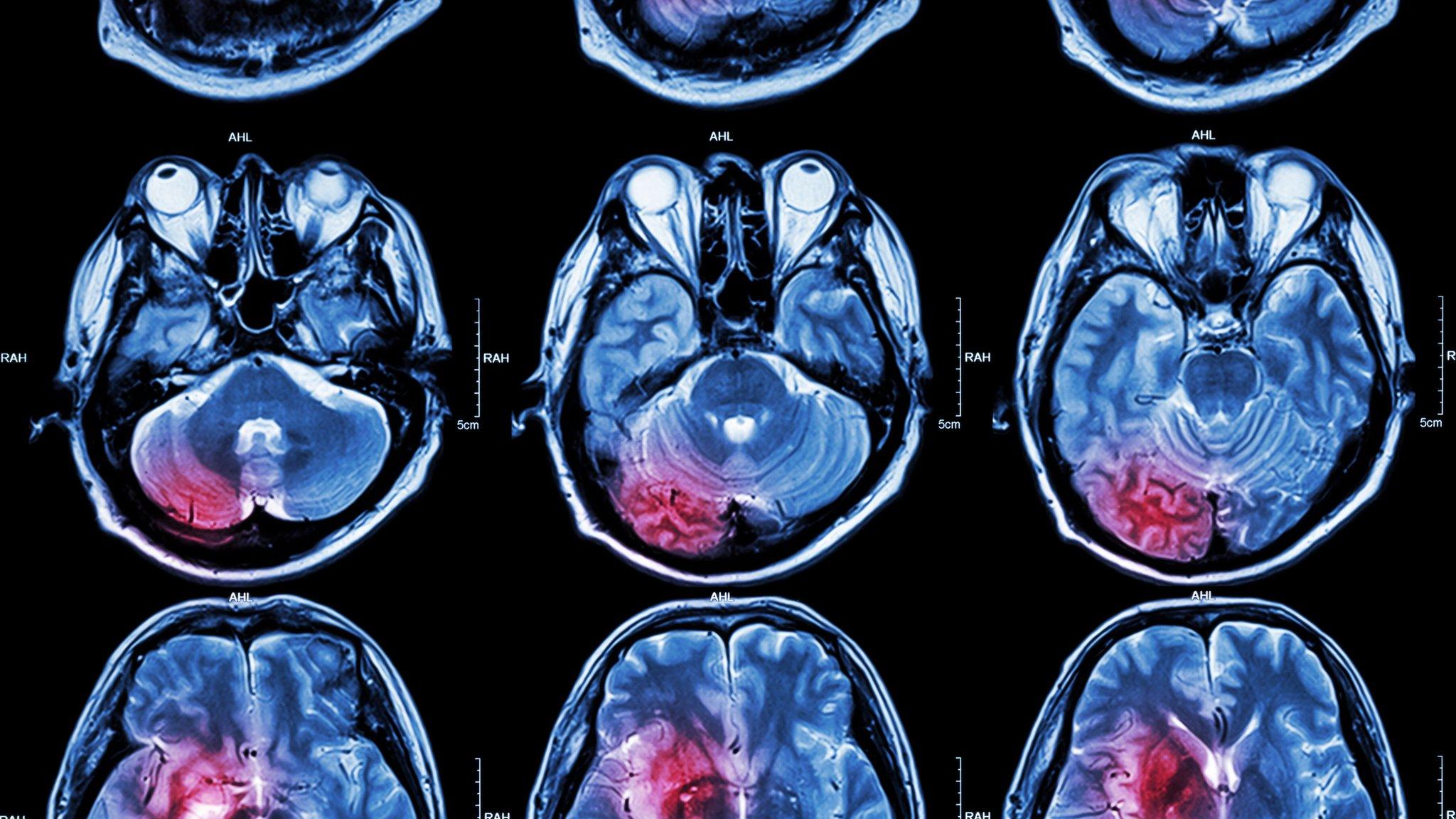 Radiografías de cerebros