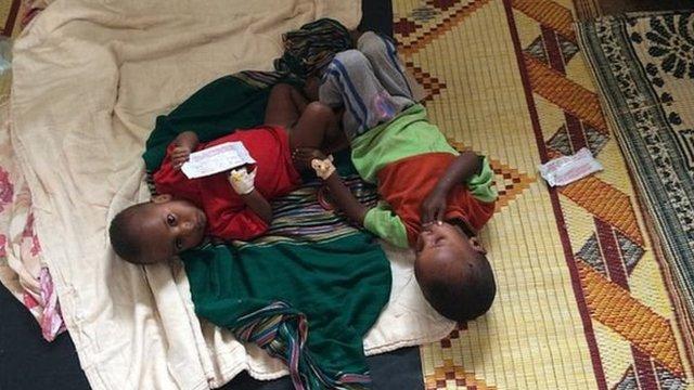 Varias regiones del país se han visto afectadas por severa malnutrición infantil.