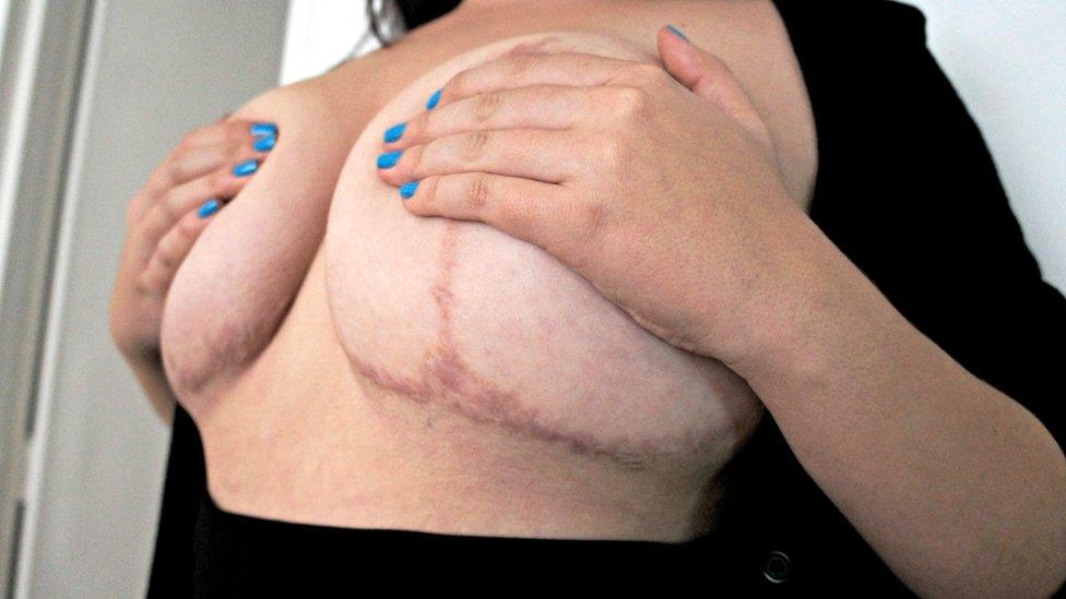 Pechos con grandes cicatrices por una mala cirugía
