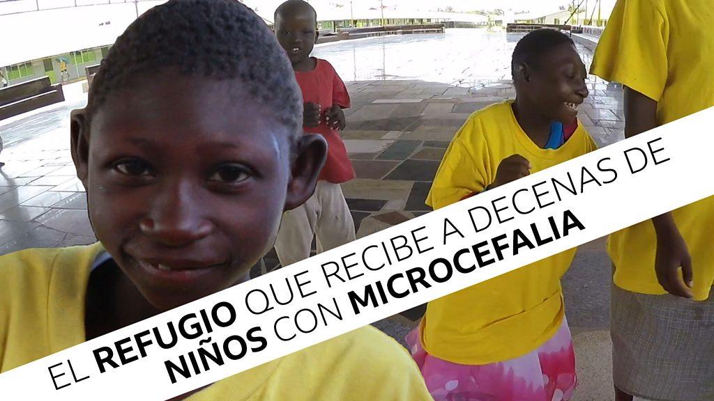 El refugio que recibe a decenas de niños con microcefalia abandonados