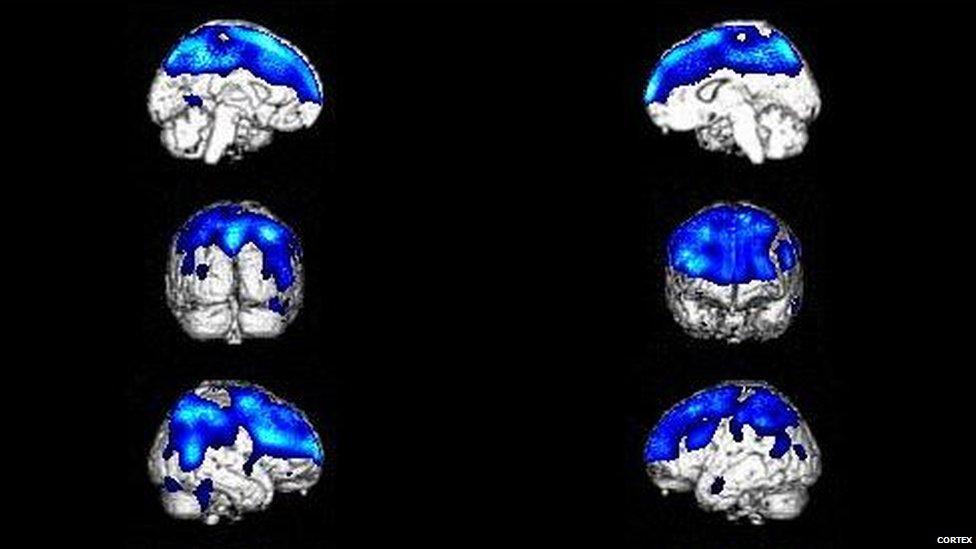 Imágenes cerebrales de un paciente con el síndrome de Cotard. (Foto: Cortex)