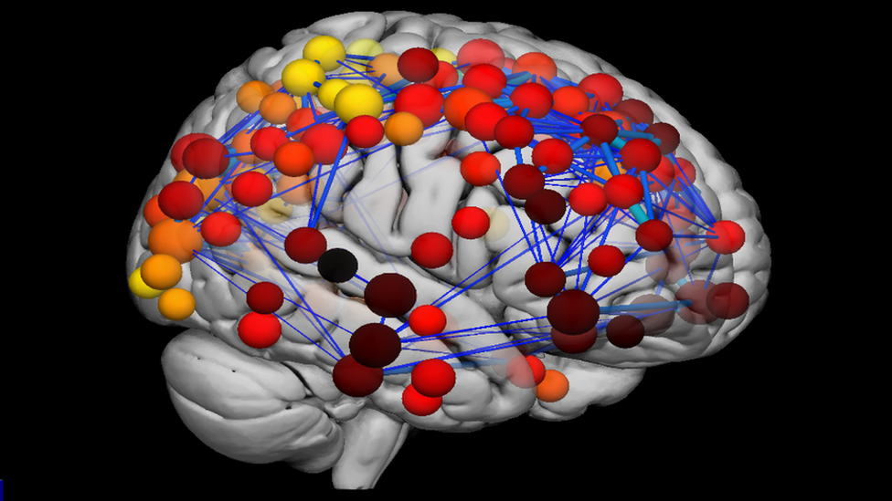 Scans reveal how teenage brain develops