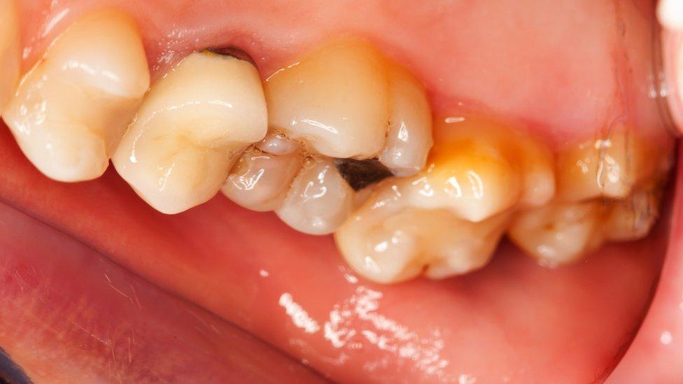 فم ملئ بالأسنان