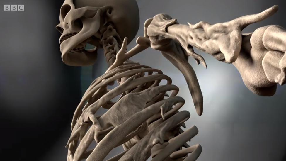 Gráfico de un esqueleto con FOP