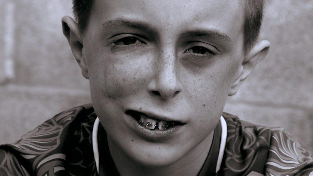 And Facial Disfigurement 38