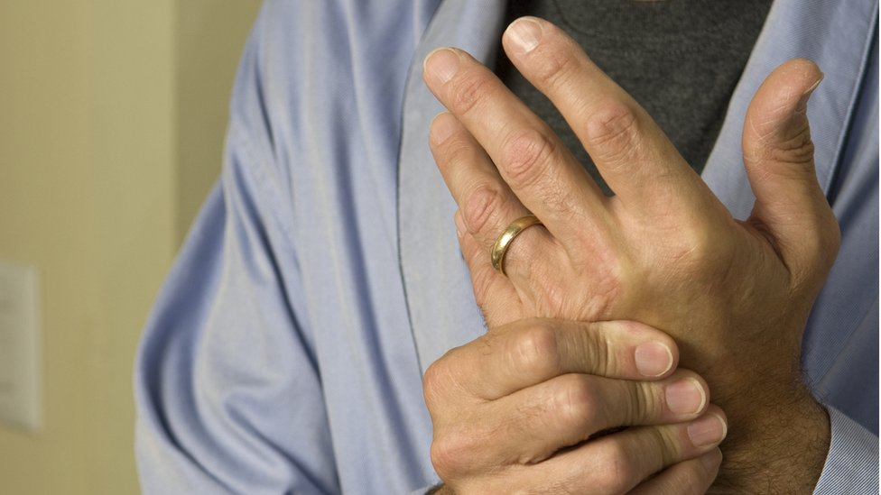 Arthritis patients experience referral delays, audit finds