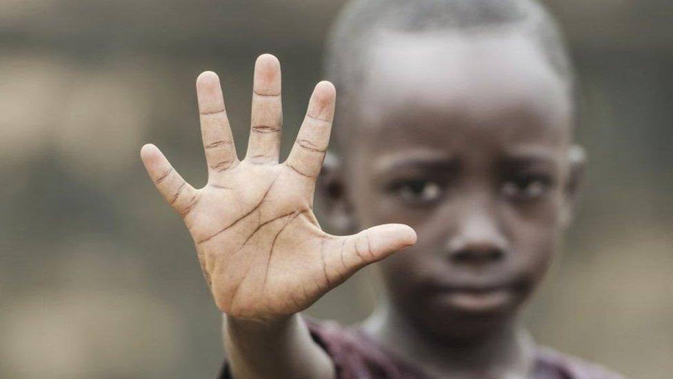 Niño muestra su mano