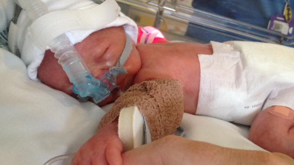 Parents of neonatal unit babies 'need psychological support'