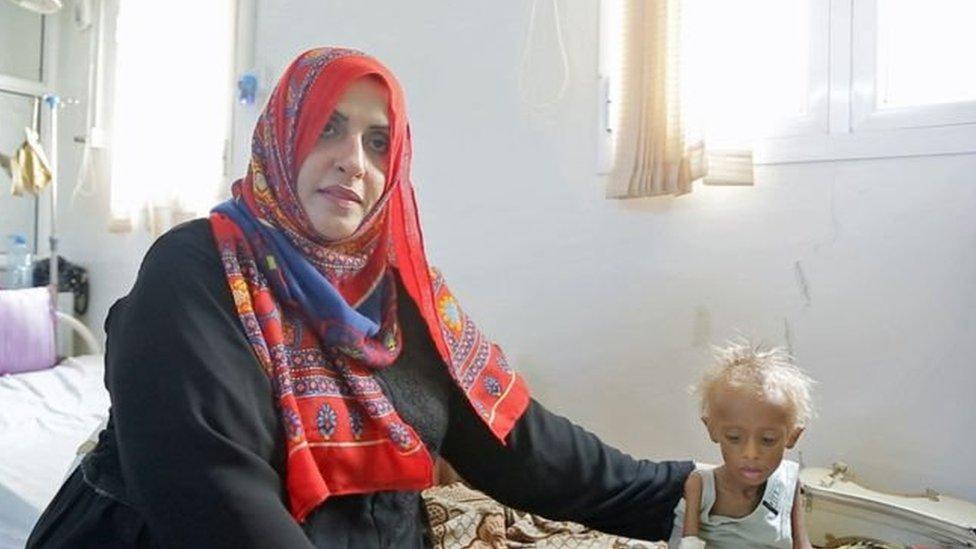 یمن کې د لوږې پر ضد د یوې ښځې مبارزه