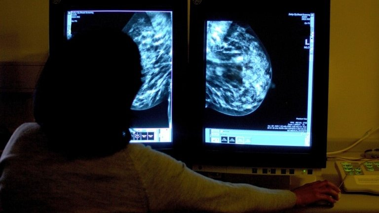 Modest cancer waiting times improvement in Wales