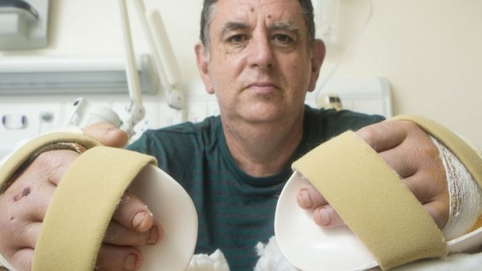 Double hand transplant: UK's first operation 'tremendous' success