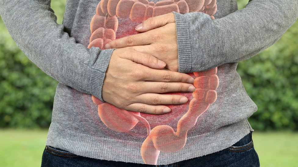 Bowel cancer rates rising 'among young adults'