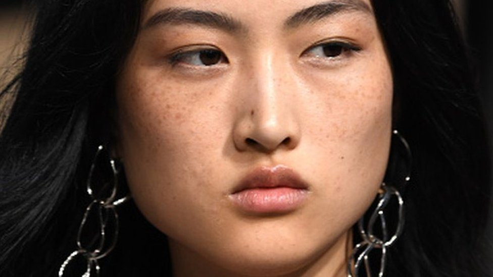 Zara advert gets China asking: Are freckles beautiful?