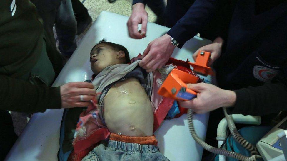 """اتهامات للقوات الحكومية السورية بـ """"استخدام غاز الكلور"""" في الغوطة الشرقية"""