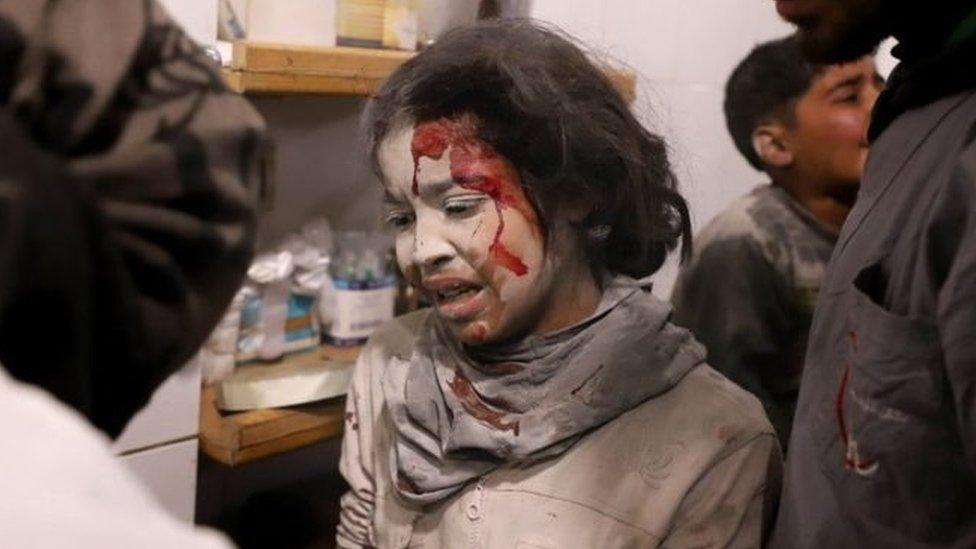 جرحى في الغوطة الشرقية