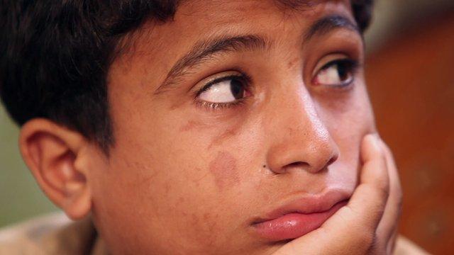 VIDEO: Battle scars: Gaza war's legacy...