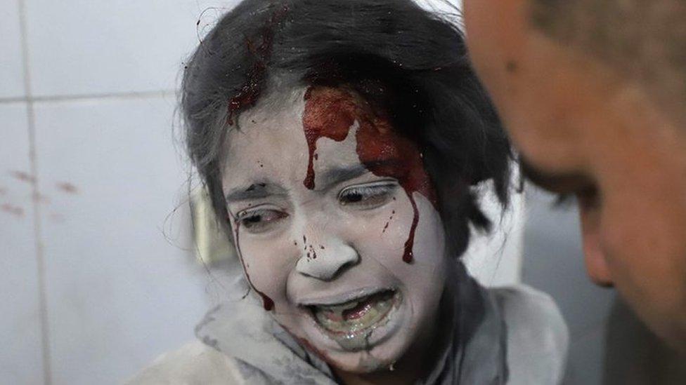 A doctor's battle in Eastern Ghouta