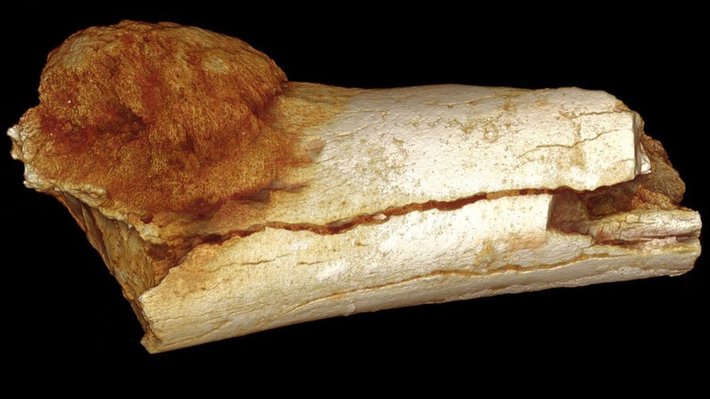 Cancer found in ancient human ancestor's foot