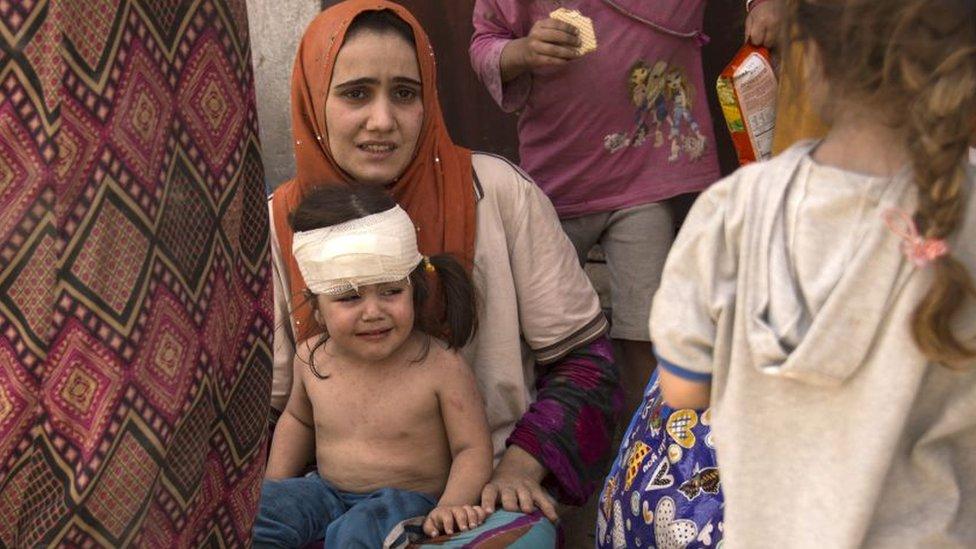Una mujer con una niña herida en Mosul