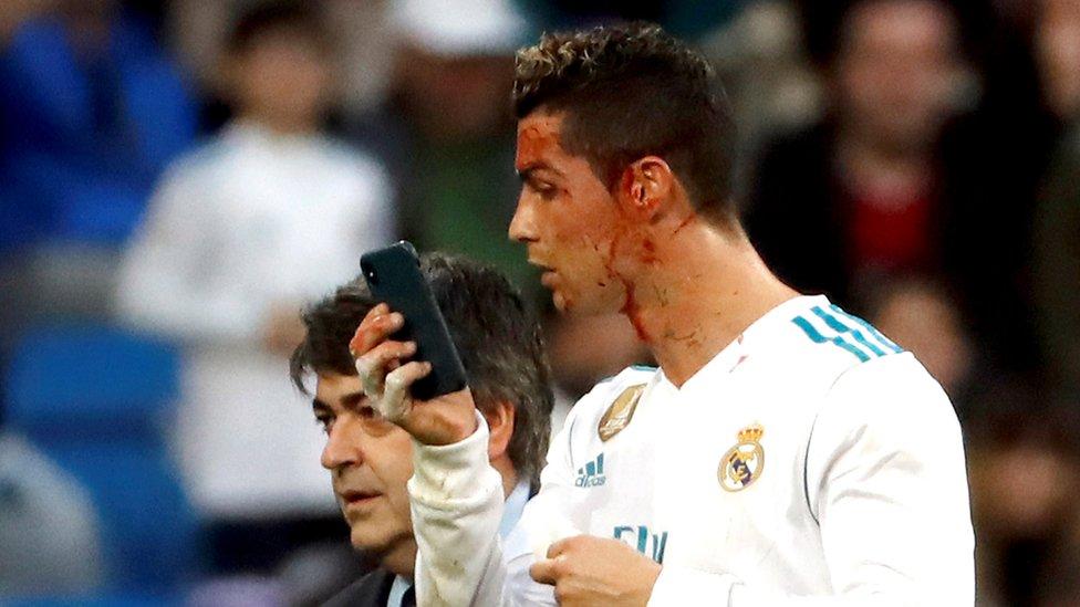 Cristiano Ronaldo revisa el corte de cara con el teléfono celular.