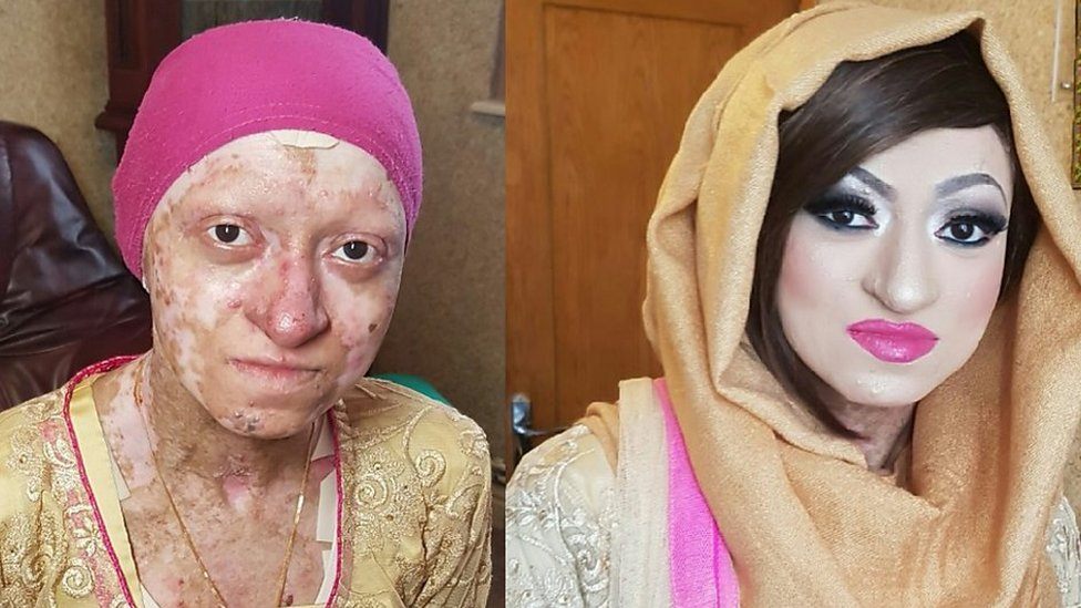 The woman with 'butterfly skin' says she feels 'blessed'