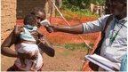 http://www.isaude.net/pt-BR/plantao-bbc/news/health-33622471
