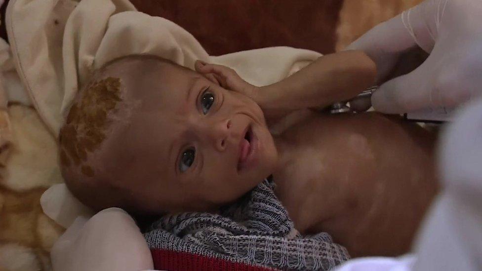 Famine threat to children of war-torn Yemen