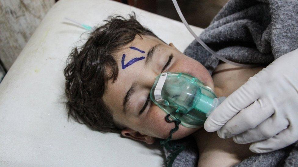 طفل يعتقد انه أصيب في هجوم كيمياوي على خان شيخون في إدلب في سوريا