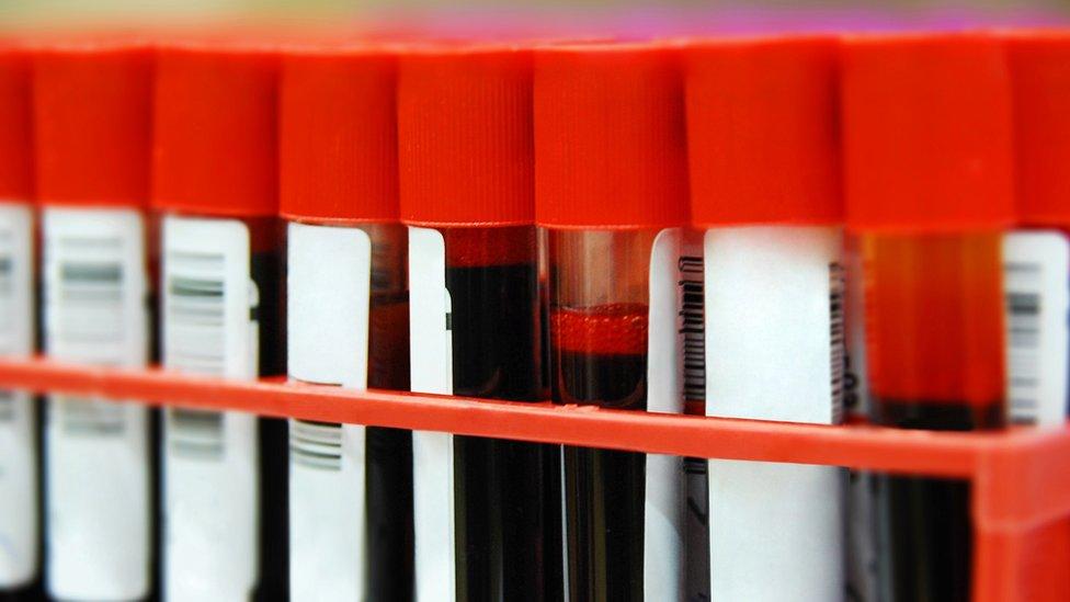 Tubos con muestras de sangre.