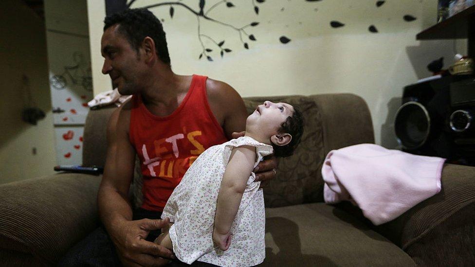 Un hombre sostiene a su hija de 8 meses afectada por microcefalia.