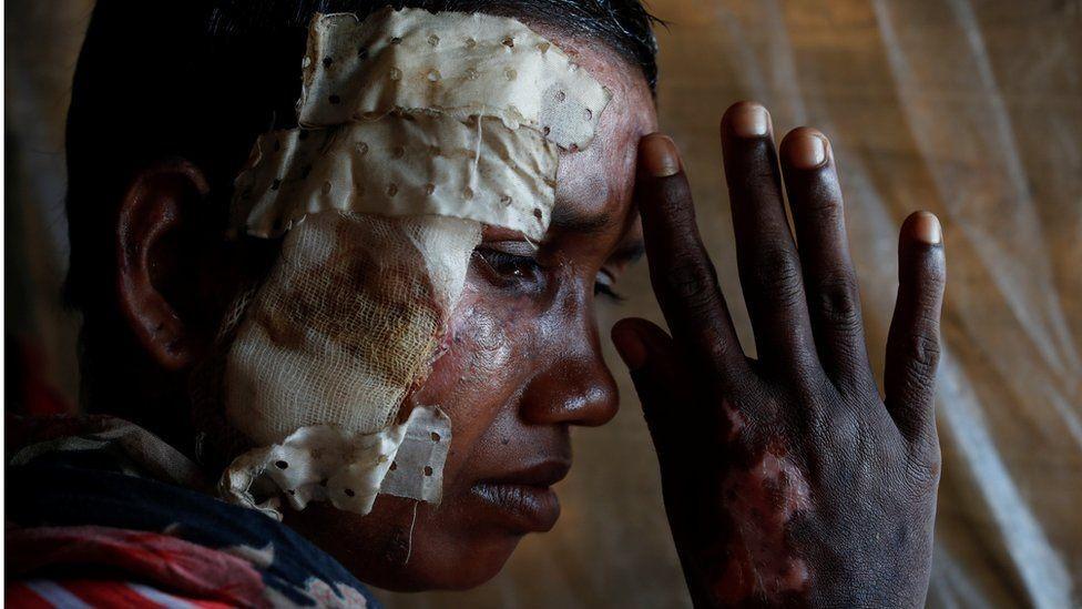 مصابة من ميانمار