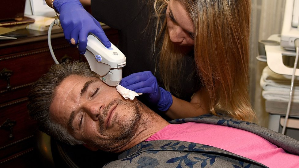 Man has mole removed by female surgeon