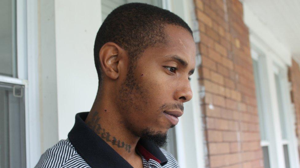 Devrone McKnight masih memiliki serpihan peluru yang tertanam di pipi dan lehernya