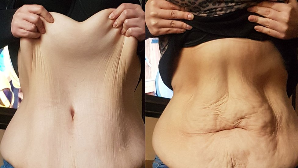 Weight Loss And Loose Skin Patients Forgotten By Nhs Pharmacy