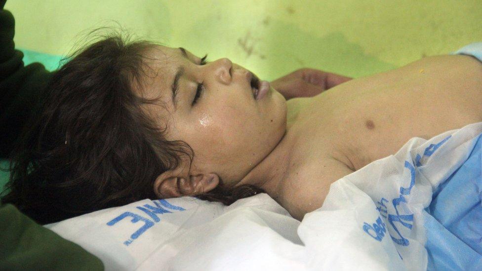 طفل مصاب يتلقى العلاج في خان شيخون في سوريا