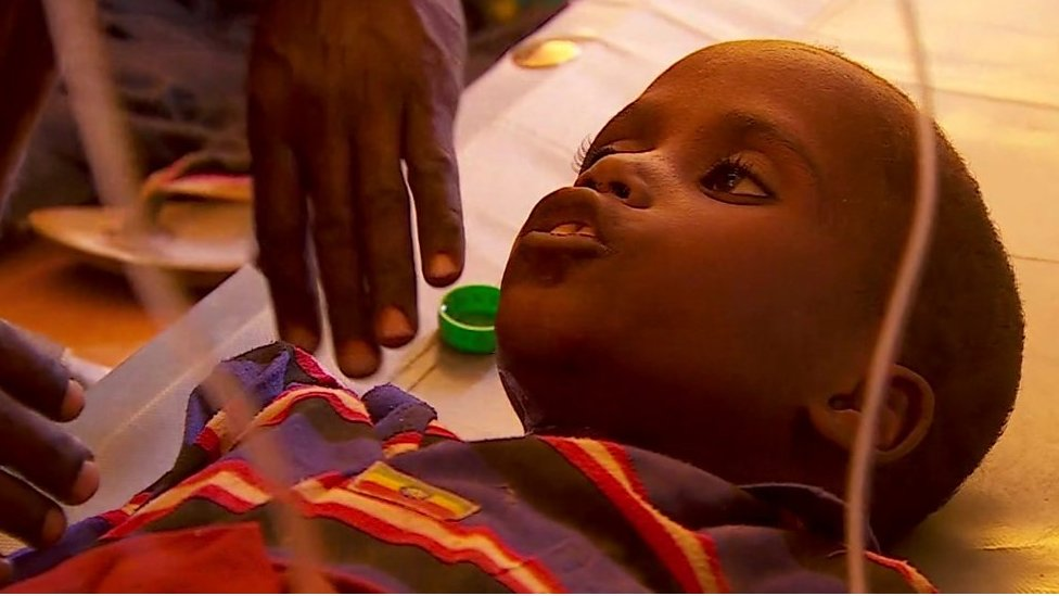 Somalia drought: How 15 minutes of treatment saves lives