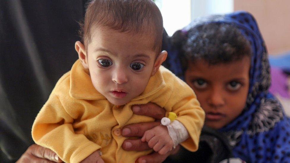 Yemen war: Vote in US Senate delivers rebuke to Trump
