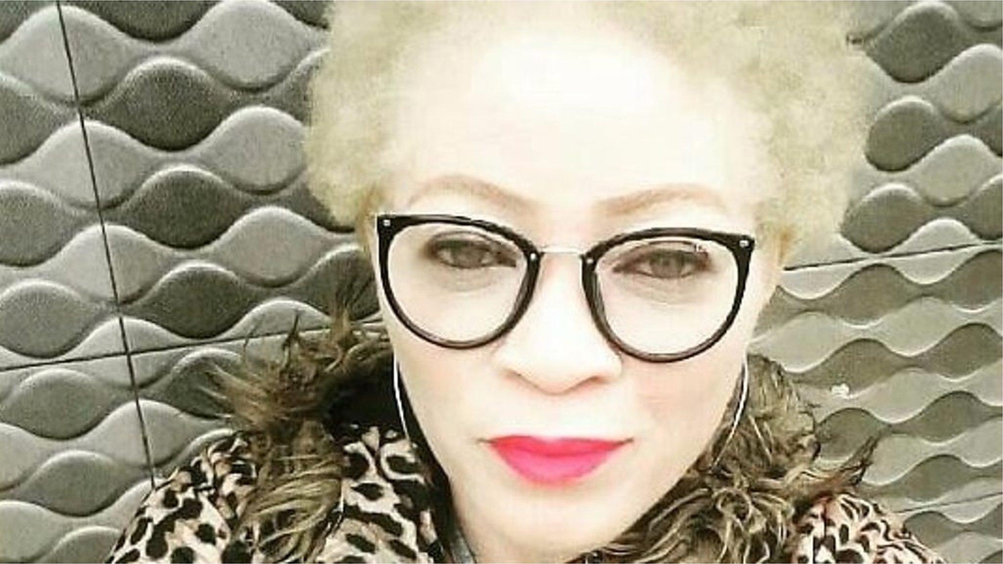 L'albinisme dans le monde   Genespoir